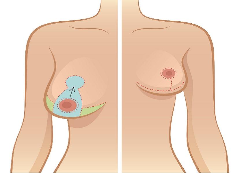 Réduction mammaire 0