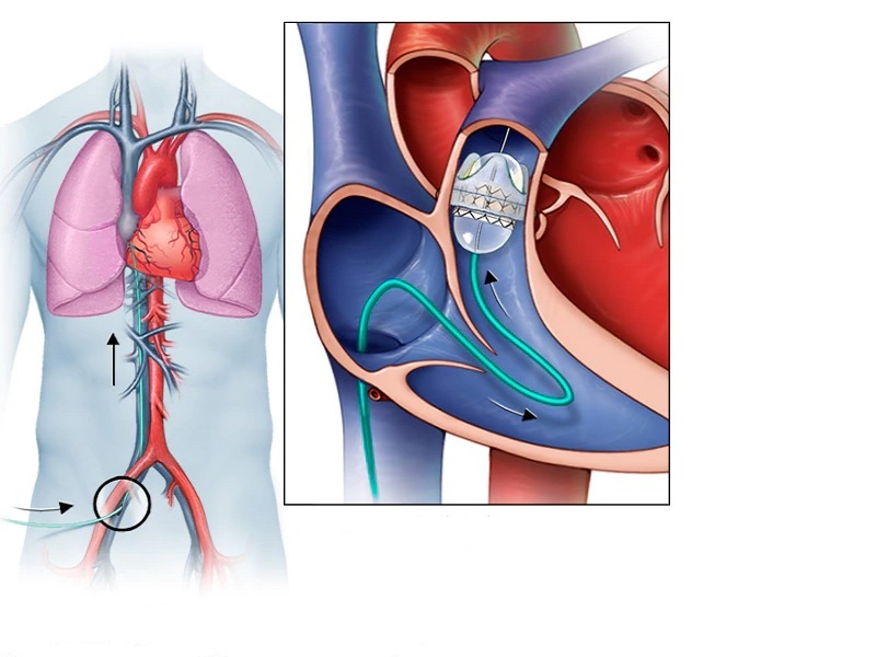 Replacement of Heart Valves 0