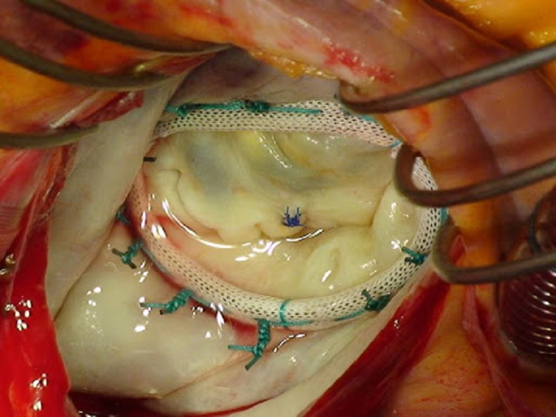 Replacement of Heart Valves 4