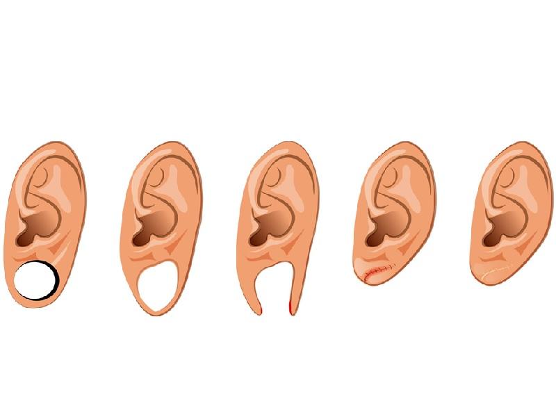 إصلاح ثقب قرط الاذن 0