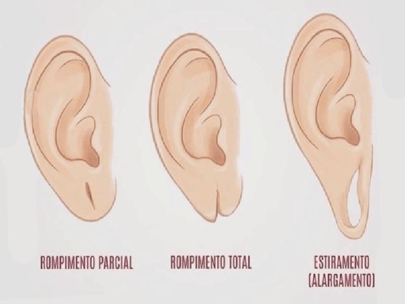 إصلاح ثقب قرط الاذن 1