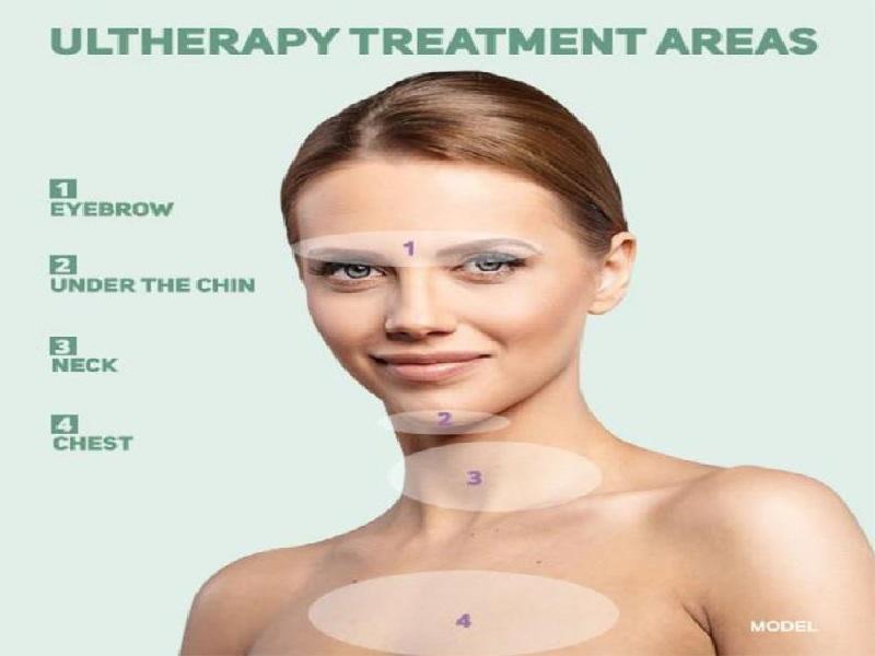 Ulthérapie 1